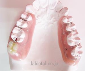 動揺歯を固定できるペリオデンチャーサンプル2個入り症例写真