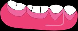 ペリオデンチャー特許|床の主成分は熱可塑性ポリアミド弾性樹脂の症例画像