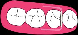 ペリオデンチャー特許|線状補強材はコバルトクロムなどの塑性変の症例画像