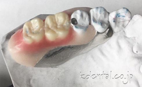 ジルコニア人工歯を使用したAiノンクラスプデンチャー