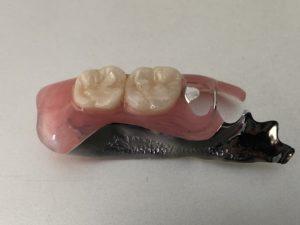 ジルコニア人工歯ノンクラスプデンチャーの完成