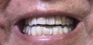 下顎スプリントの画像2
