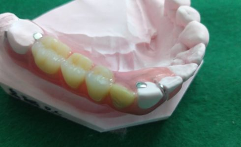 ノンクラスプデンチャー片側4歯欠損