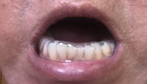 下顎スプリントの画像1