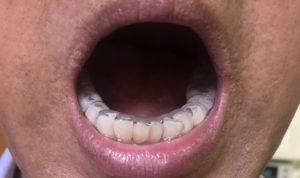 下顎スプリントの画像3