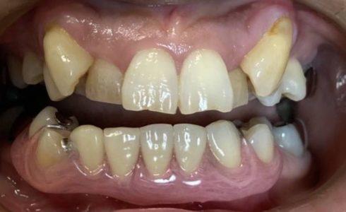 下顎の左下3番~右下2番までのノンクラスプデンチャーです