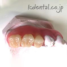 ジルコニア人工歯