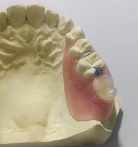 ノンクラスプ1本義歯
