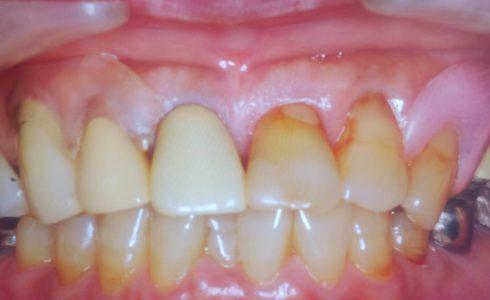 一顎2床で片方がAIもう片方がオールクリアのめずらしい症例です オールクリアの方は舌側から見ましても ほぼ目立ちません。