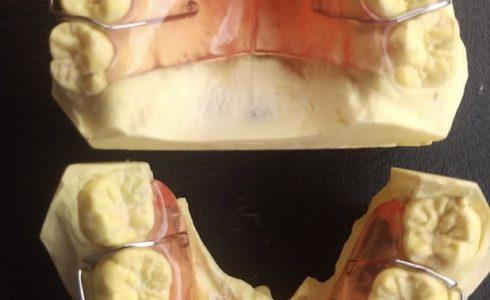 口蓋拡大装置 スタンダードな床拡大装置ですがとても適合もよく、綺麗に仕上がっておりどちらも好評でした。 口蓋部が狭いために口蓋骨を拡大する力を大きく加える装置です