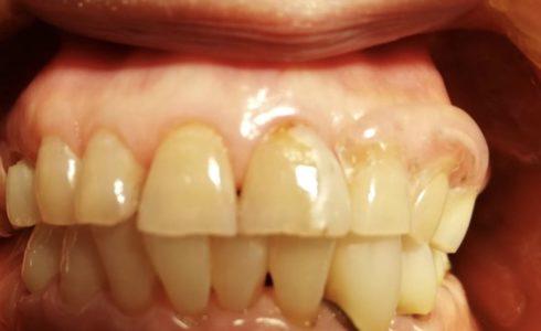 CIデンチャー 片側バー設計 前歯部 埋め込みワイヤーで製作 透明樹脂の為、審美性を考慮して、歯肉色オペークを塗って目立ちにくく製作しています。
