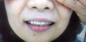 上顎前歯1123ノンクラスプ