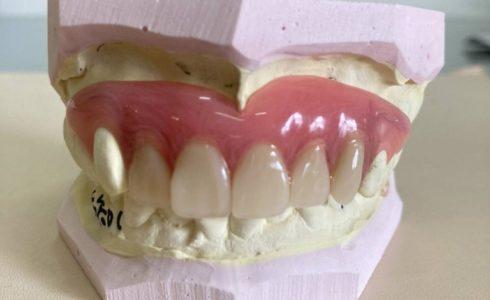 上顎2-3のAIデンチャー症例