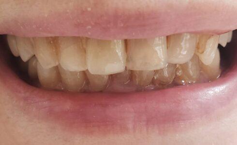 e.max前歯1番セット反対側に合わせる為、切端側 透明感強く 製作しています