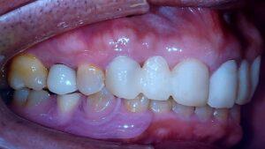 右下4の1本義歯です。 天然歯を形成して、BrにせずにAIを選択しました