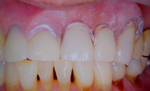 最高の入れ歯 クリアデンチャー 透明で見えない入れ歯