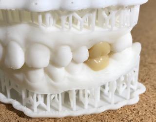 口腔内スキャンデーター送信 形成は、簡略的に心がける。複雑な窩洞は光が入りにくく精度が出しずらい