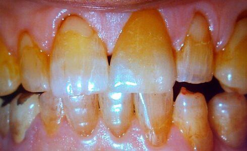 左上1番のe-maxラミネートベニア症例