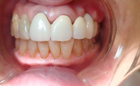 左上1番から右上4番までのフルベイクのメタルボンド。歯肉はテックを外してすぐのため戻っておりませんがかたつく事も無くセットできました。 お色は患者様の希望でA2の白い色での製作となりました。