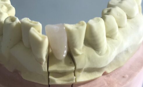最近前歯のCAD冠増えています