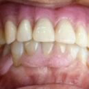 アルティメット樹脂で総義歯を作る利点とは?
