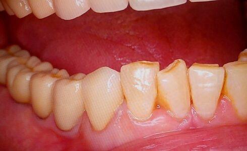 右下3番のジルコニアセット右側の臼歯は全てジルコニア