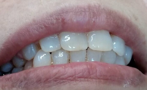 辺側567ノンクラスプデンチャーセット 3歯欠損はよくある症例です 安心してセットできます