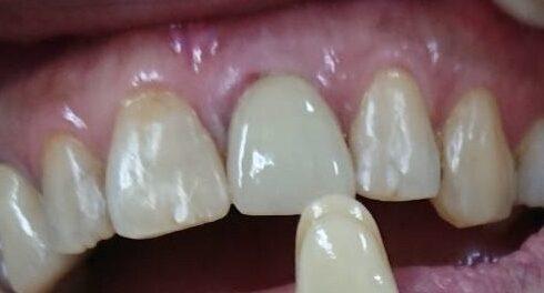 emax上顎2番セット emaxは色調が良く、ジルコニアよりシェードを合わせやすい特徴があります 摩耗硬度も天然歯に近く厚みが取れて強度さえ確保できたらいい材料です