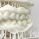 口腔内スキャナーで3dプリンターを利用する方法