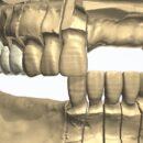 3Dデザイン ロングスパンのジルコニア症例を製作