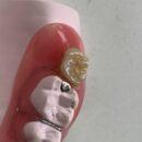 スペシャルオーダーのプロトタイプの人工歯。非常に高強度で審美性の高くより軽く、よりリーズナブルに